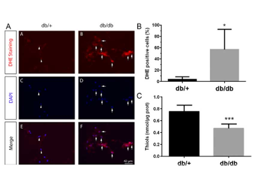 Enhanced oxidative stress in adipose tissue from diabetic mice, possible contribution of glycated albumin