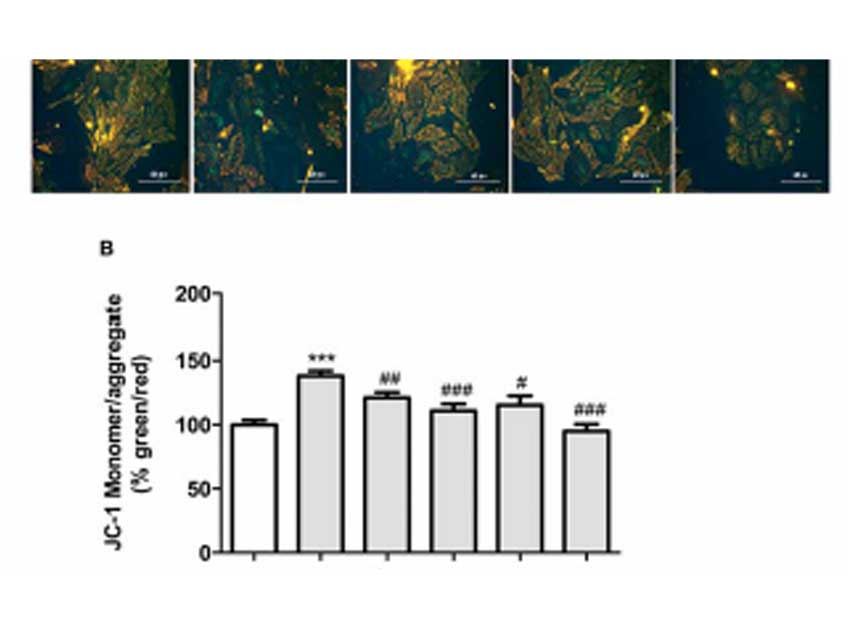 Phenylpyruvic Acid-2-O-β-D-Glucoside Attenuates High Glucose-Induced Apoptosis in H9c2 Cardiomyocytes